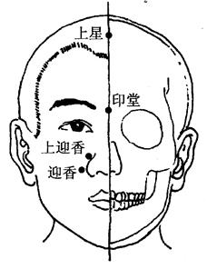 图7-4-1