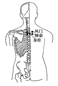 图2-2-1肺俞、身柱、风门