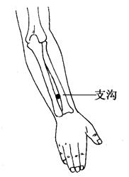 图2-4-6支沟