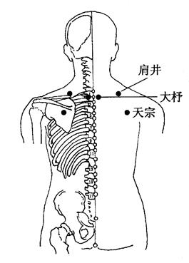 图3-1-1肩井、大杼、天宗