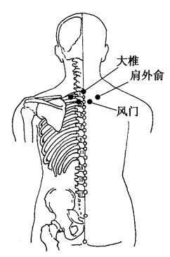 图3-2-3大椎、肩外俞、风门